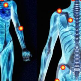 Fibromyalgia: how to live with this condition?